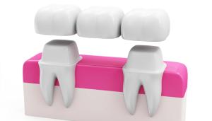 Dental Bridges Chelmsford